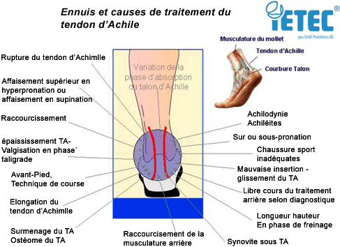 Ennuis et causes de traitement du tendon d'Achille